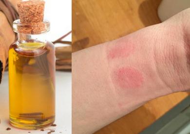 Nguyên nhân và cách chữa dị ứng tinh dầu quế nhanh chóng