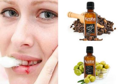 Tinh dầu nào chữa được chảy máu chân răng?