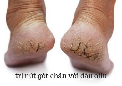 Dầu oliu trị nứt gót chân