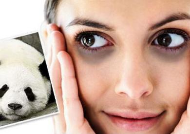 Bí quyết trị quầng thâm ở mắt hiệu quả với tinh dầu