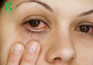 Bị dầu dừa dính vào mắt có sao không?