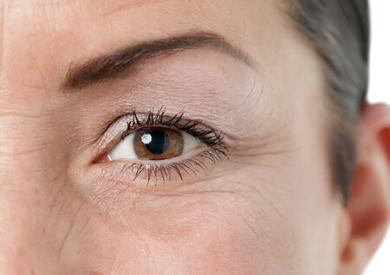 Bí quyết ngăn ngừa nếp nhăn quanh mắt