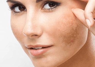 Tinh dầu oải hương trị nám da tự nhiên hiệu quả
