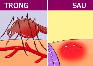 Điều gì sẽ xảy ra với cơ thể của chúng ta khi bị muỗi đốt?