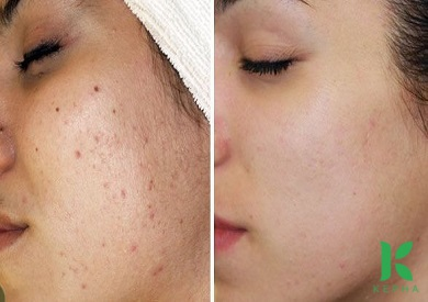tinh dầu oải hương trị nám da