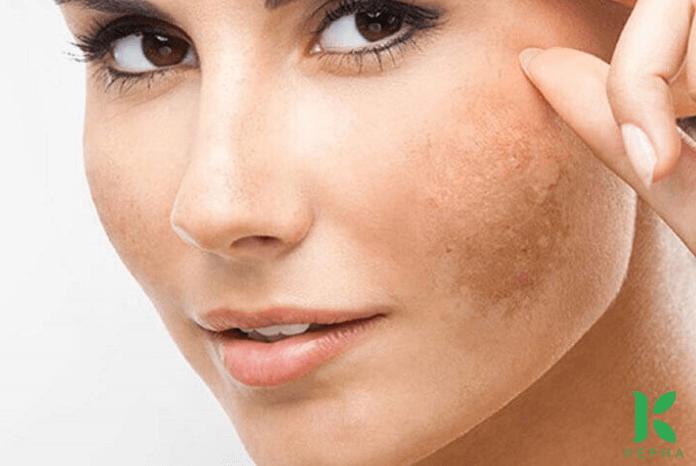 tinh dầu oải hương trị nám da mặt