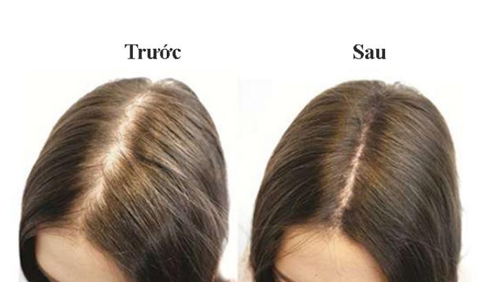 chăm sóc tóc với  tinh dầu sả chanh